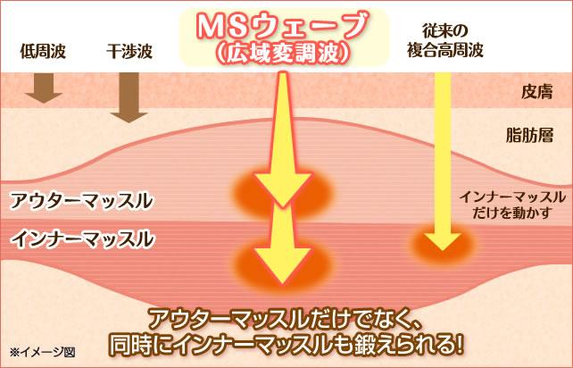 MSウェーブイメージ図
